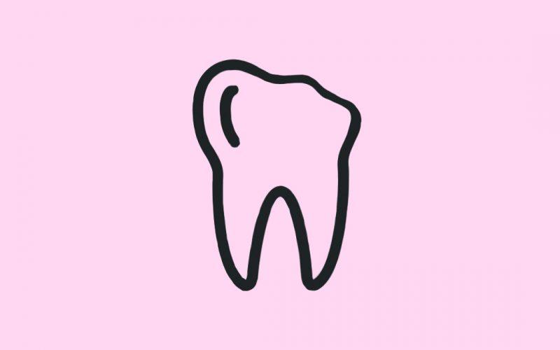 broken tooth/ Sugar Fix Dental Loft/ Sugar Fix Dental Loft