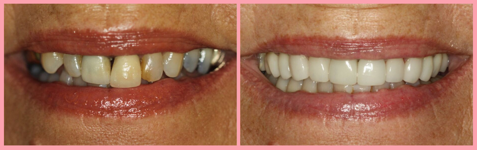 Porcelain Veneer Makeovers #2