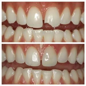 sugar fix dental loft//spring