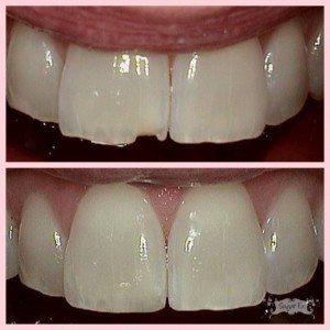 Emergency Dental Care // Sugar Fix Dental Loft // Lakeview Dentist